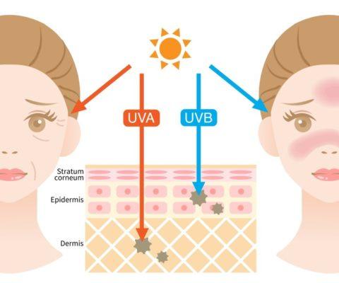 日焼けによる肌への悪影響