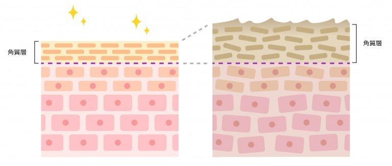 厚い角質層の図
