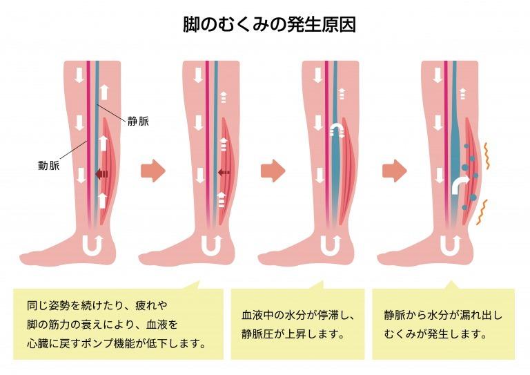 脚のむくみの発生原因